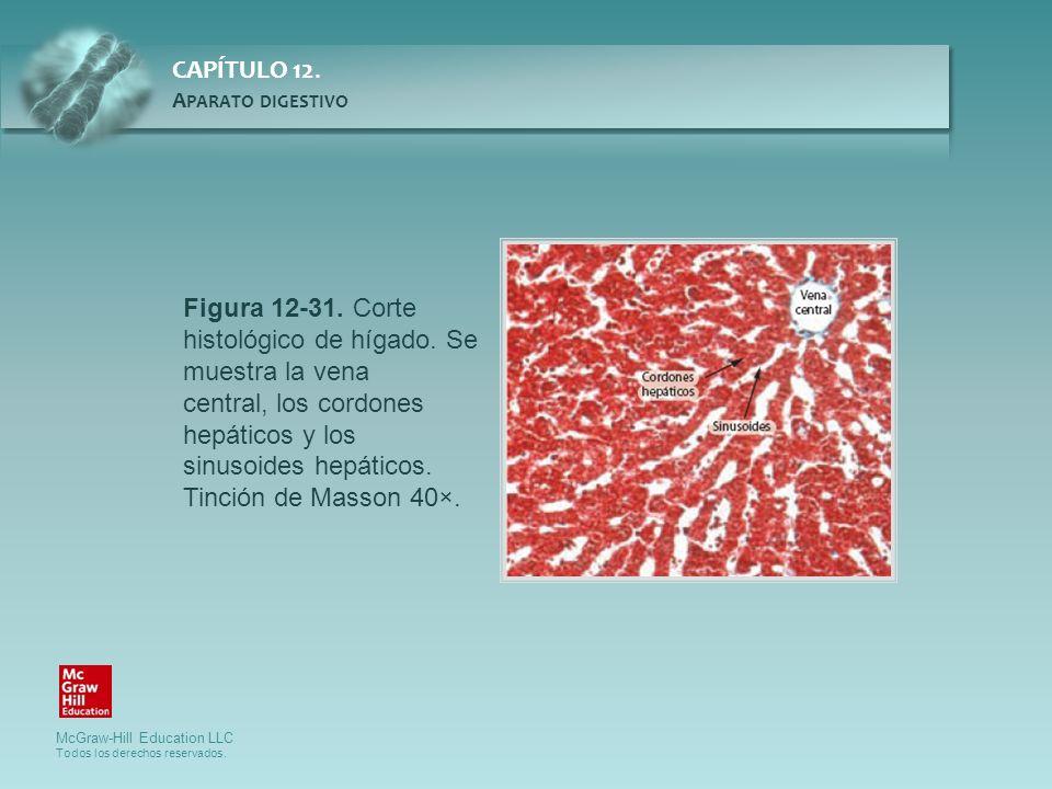 Figura 12-31. Corte histológico de hígado. Se muestra la vena