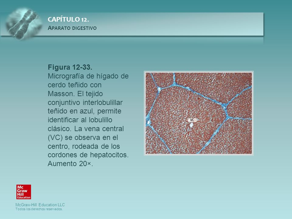 Figura 12-33. Micrografía de hígado de cerdo teñido con Masson