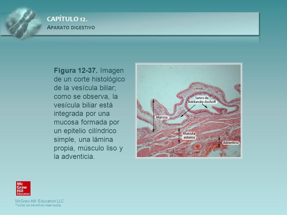 Figura 12-37. Imagen de un corte histológico de la vesícula biliar; como se observa, la vesícula biliar está integrada por una