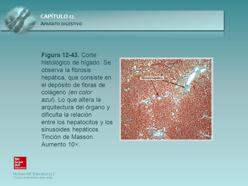 Figura 12-43. Corte histológico de hígado. Se observa la fibrosis