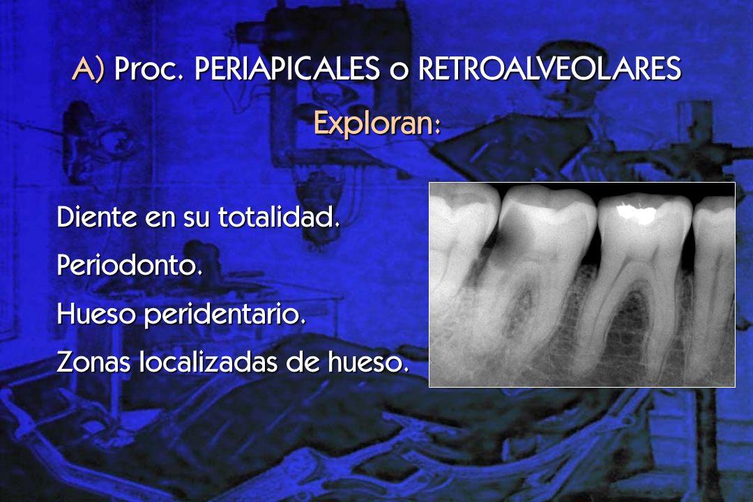 A) Proc. PERIAPICALES o RETROALVEOLARES
