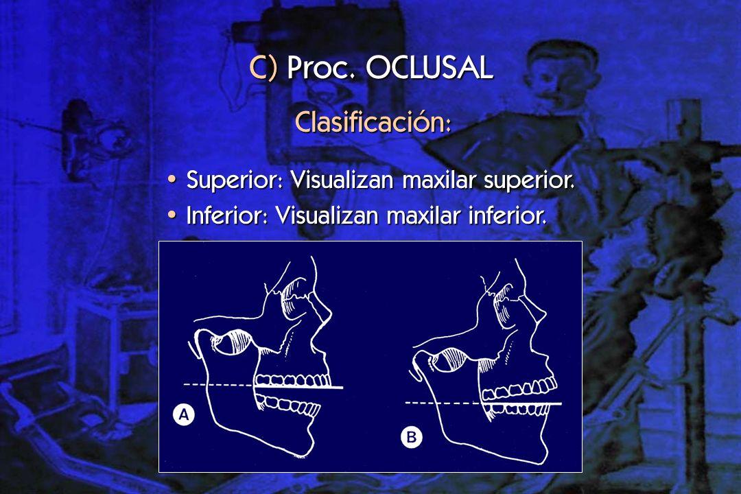 C) Proc. OCLUSAL Clasificación: Superior: Visualizan maxilar superior.