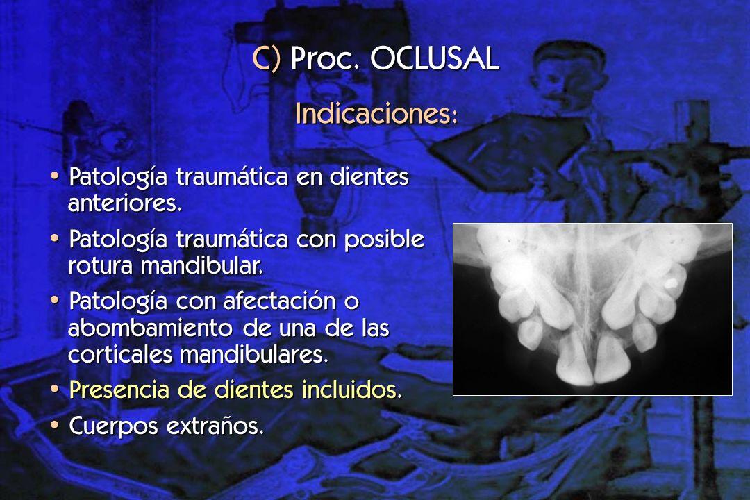 C) Proc. OCLUSAL Indicaciones: