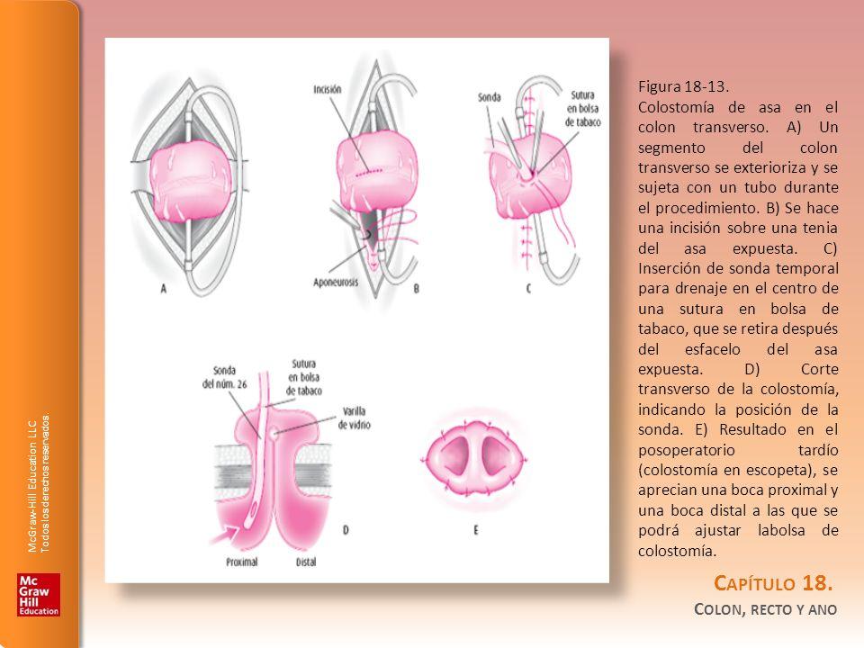 Figura 18-13.