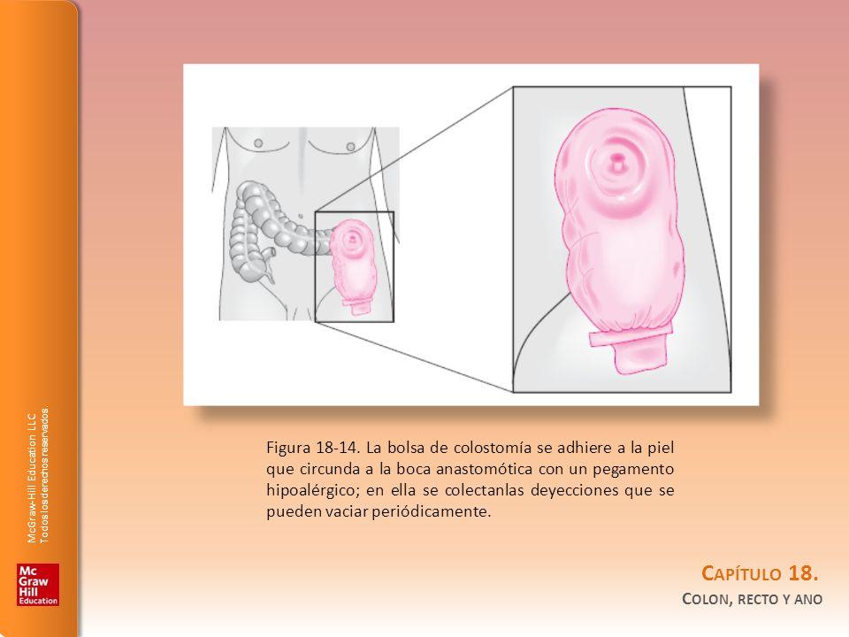 Figura 18-14.