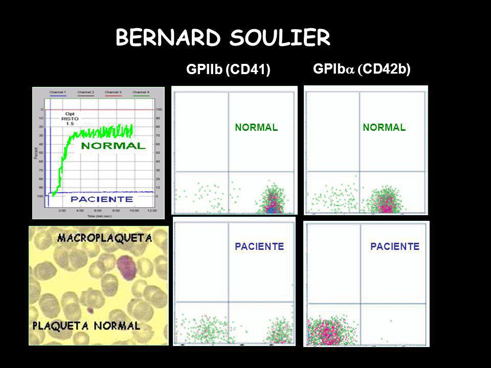 GPIIb (CD41) GPIba (CD42b) NORMAL PACIENTE BERNARD SOULIER
