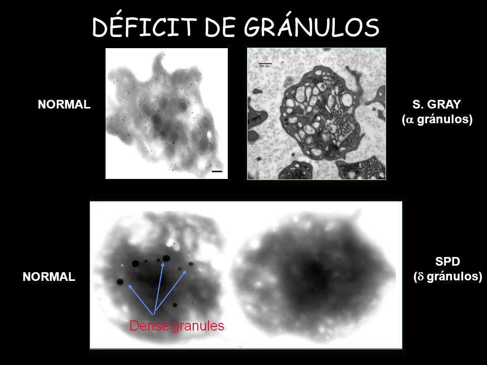 DÉFICIT DE GRÁNULOS NORMAL S. GRAY ( gránulos) SPD ( gránulos)