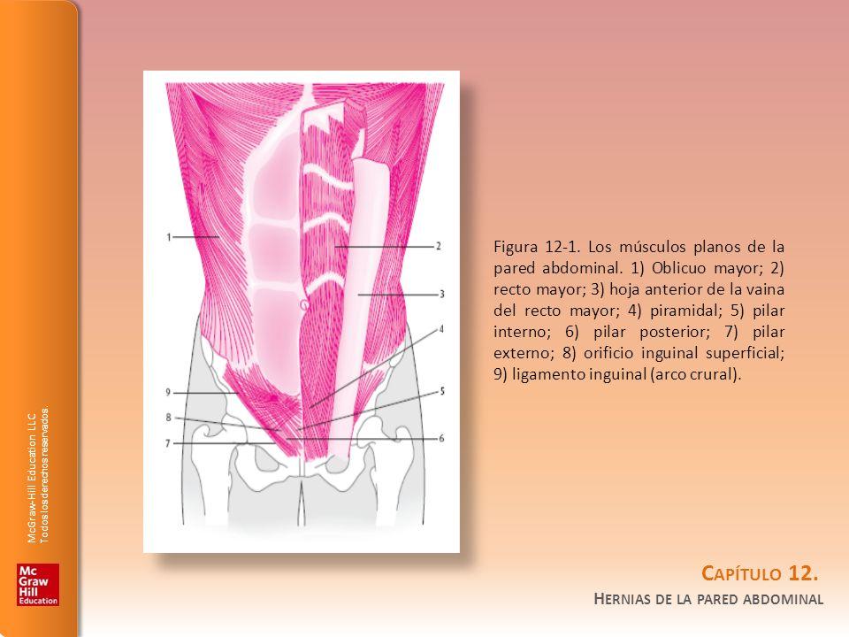 Figura 12-1. Los músculos planos de la pared abdominal