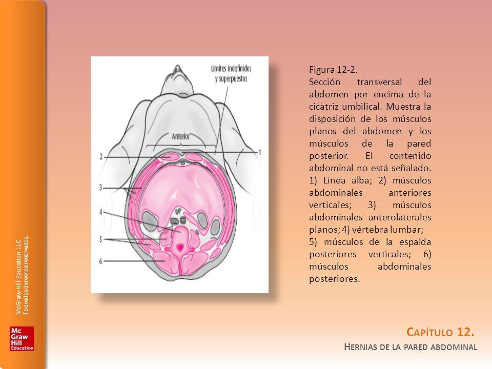 Figura 12-2.