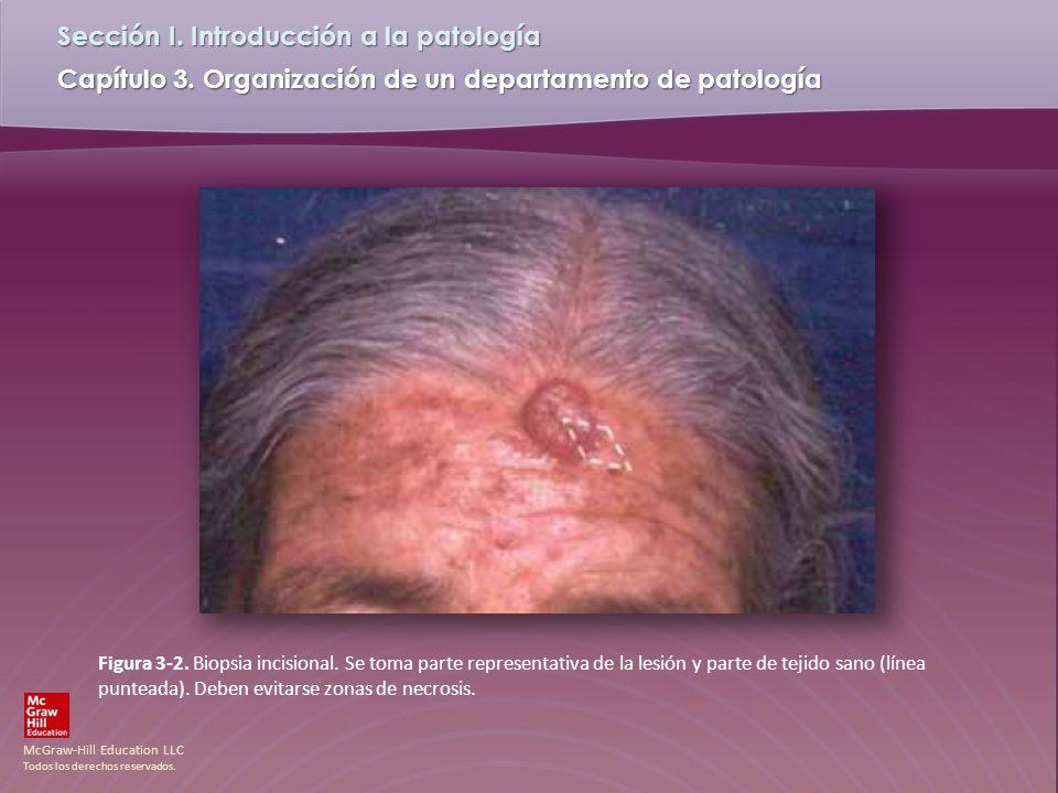 Figura 3-2. Biopsia incisional