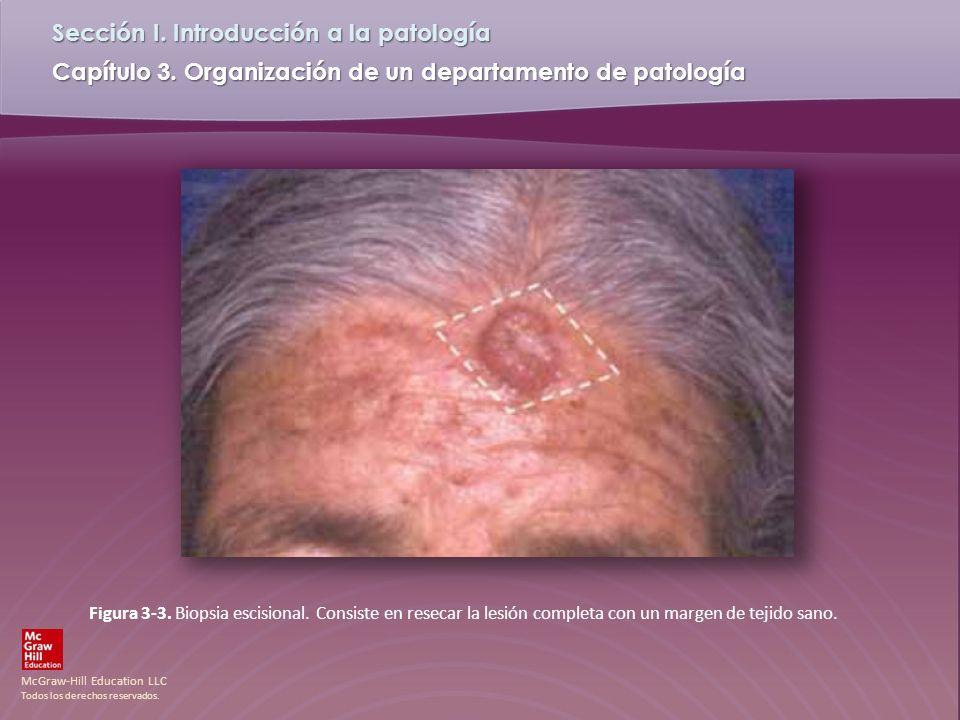 Figura 3-3. Biopsia escisional