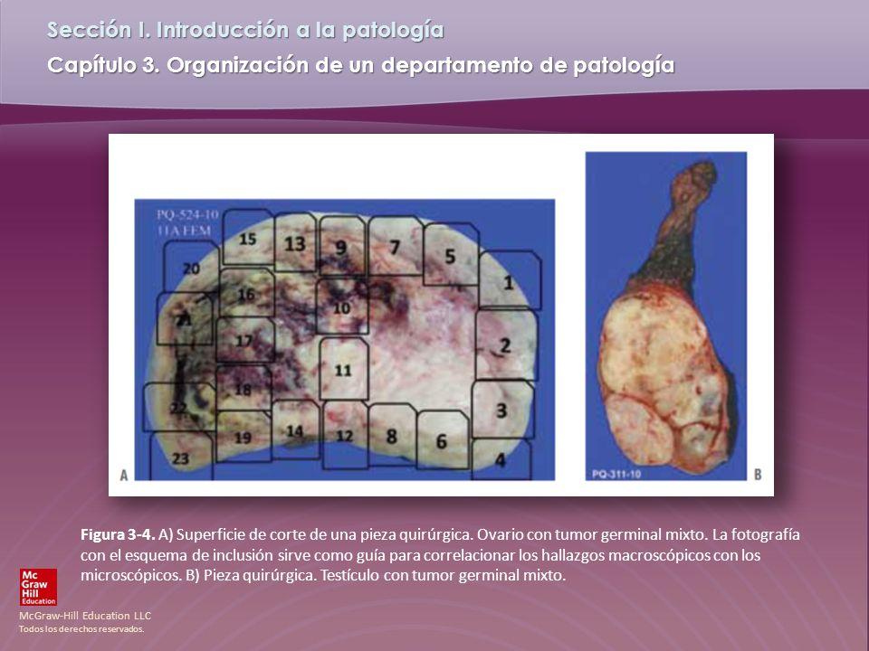 Figura 3-4. A) Superficie de corte de una pieza quirúrgica