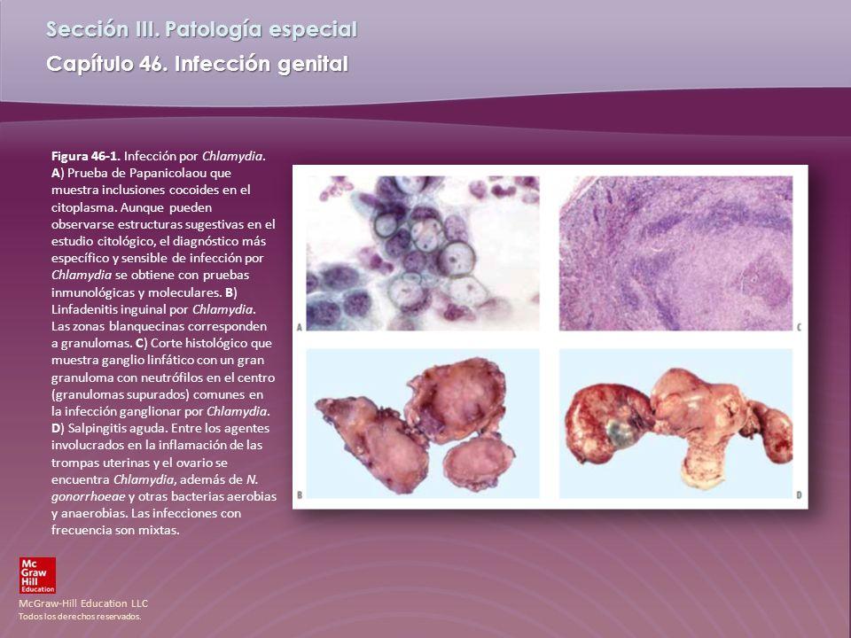 Figura 46-1. Infección por Chlamydia