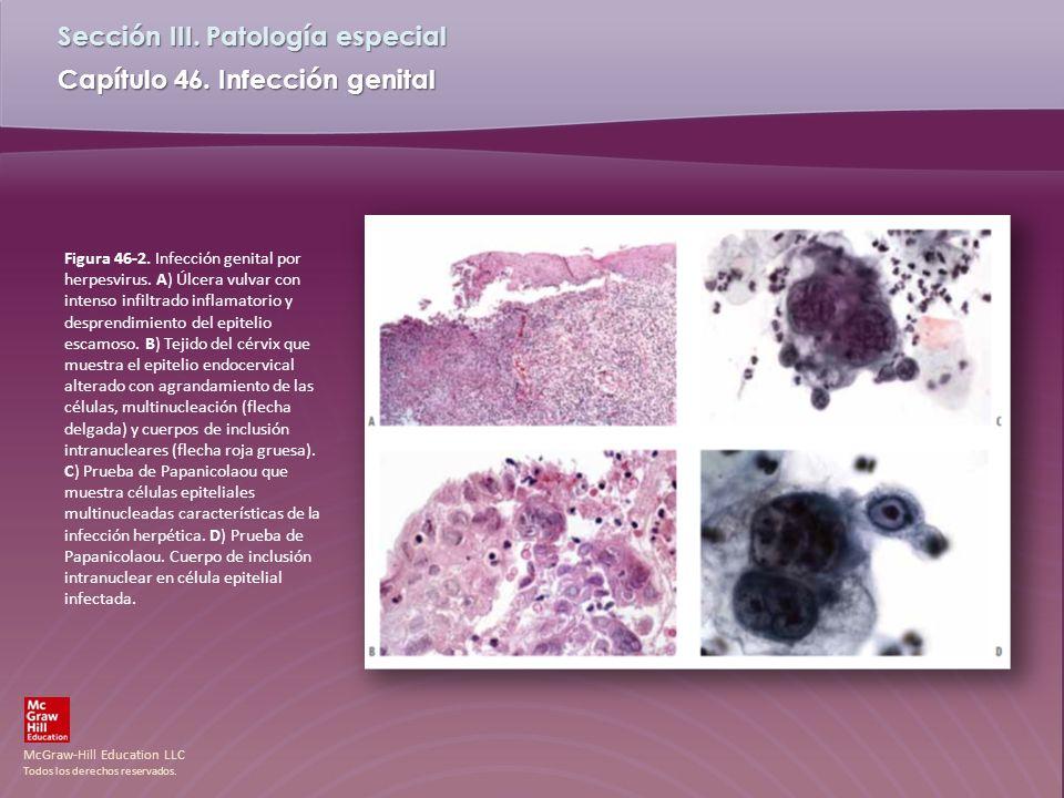 Figura 46-2. Infección genital por herpesvirus