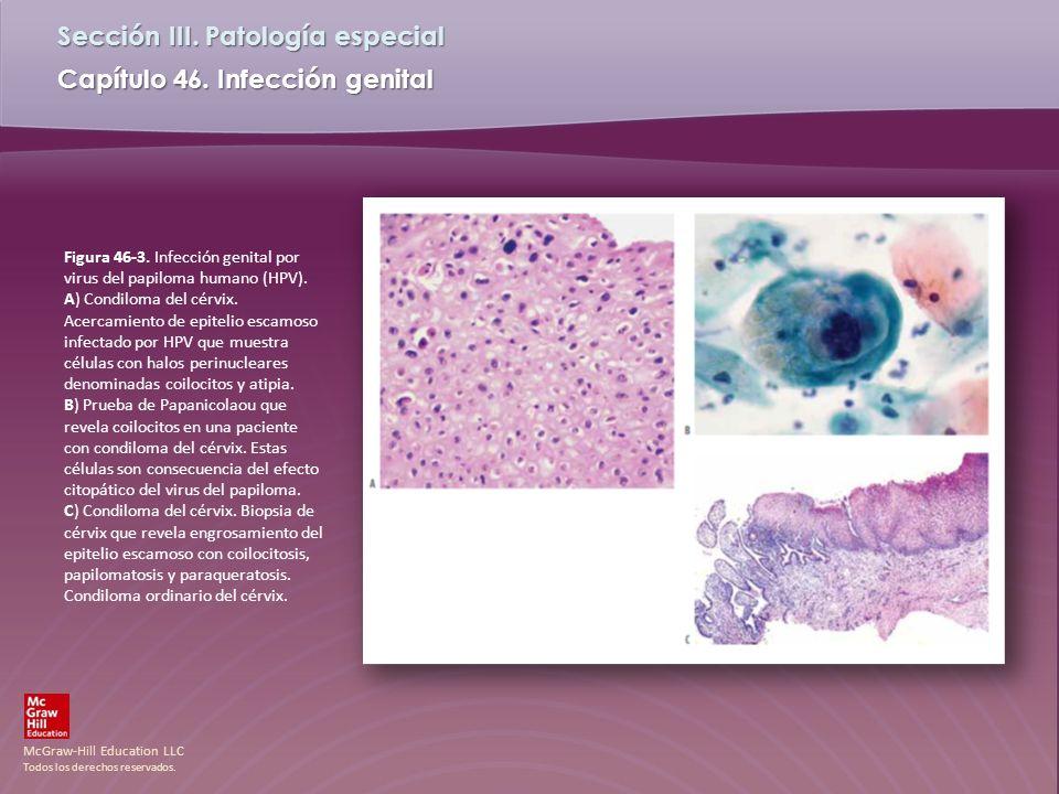 Figura 46-3. Infección genital por virus del papiloma humano (HPV)