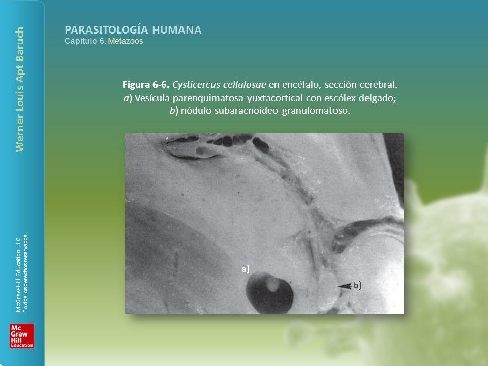 b) nódulo subaracnoideo granulomatoso.