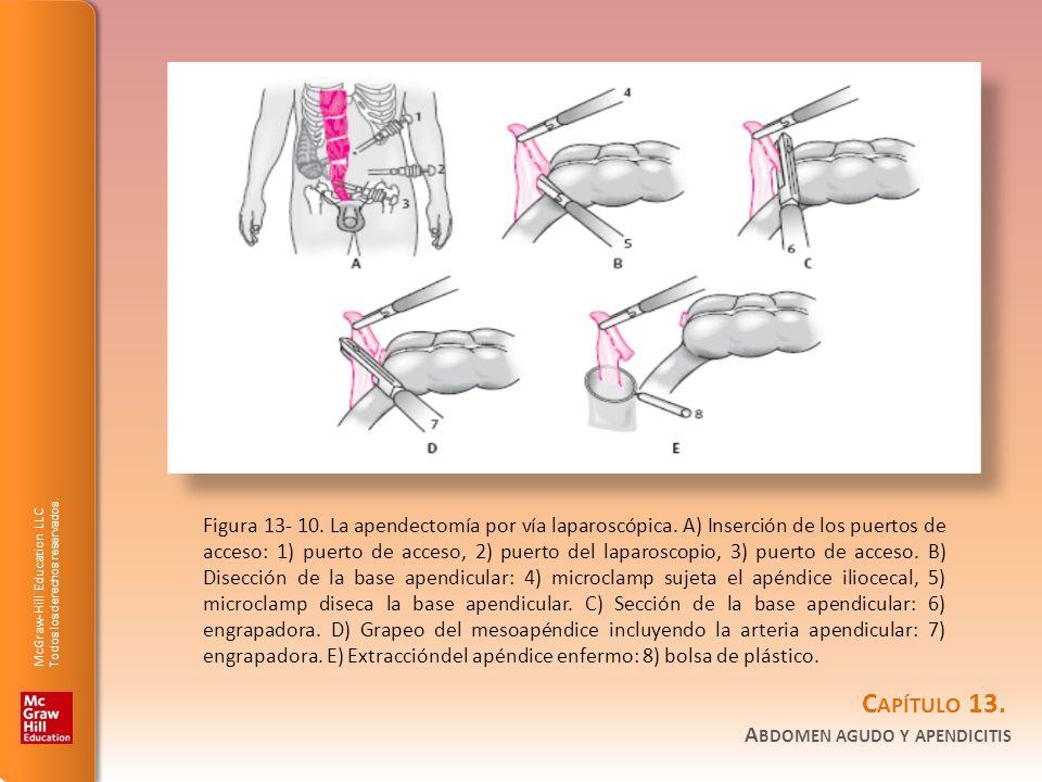Figura 13- 10. La apendectomía por vía laparoscópica