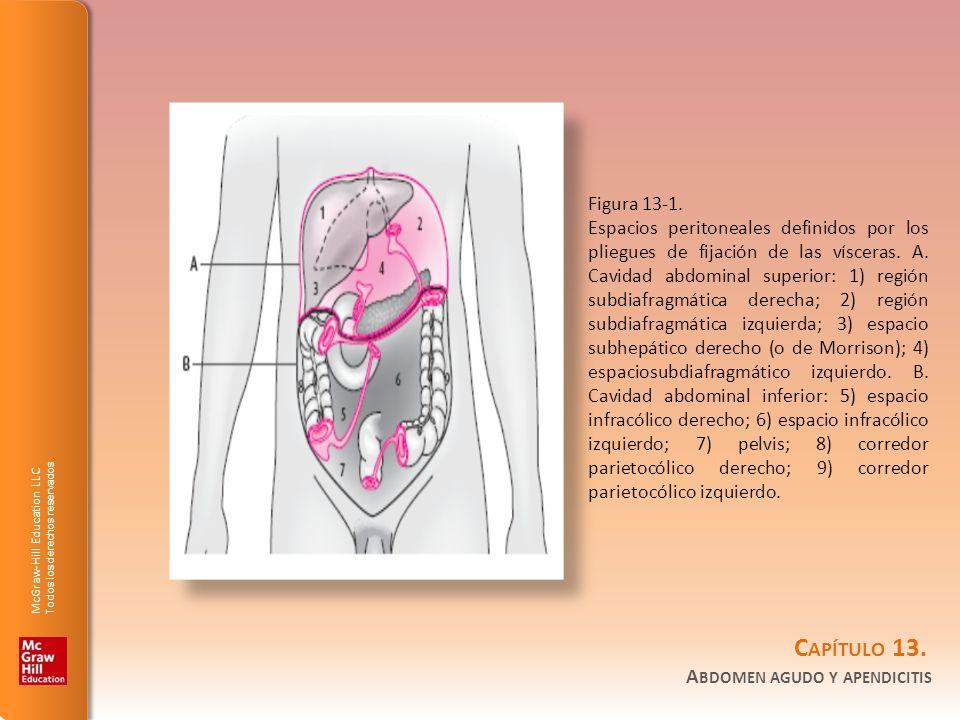 Figura 13-1.