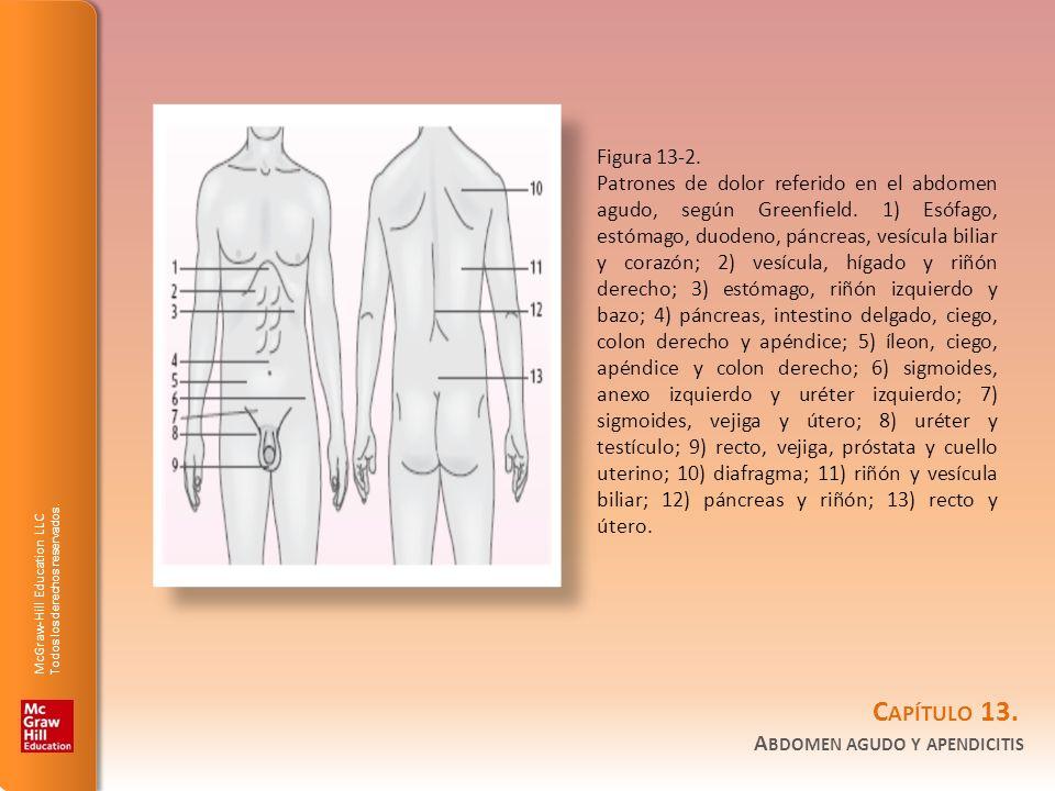 Figura 13-2.