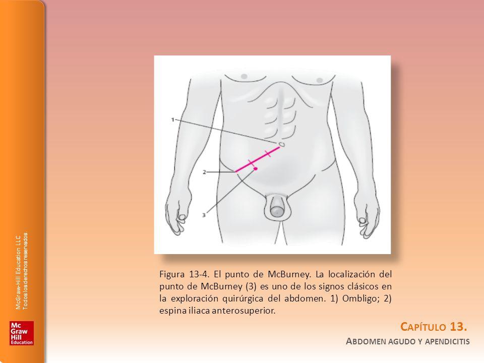 Figura 13-4. El punto de McBurney