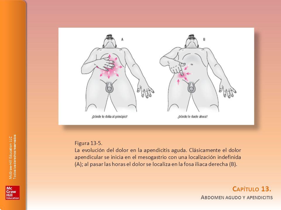 Figura 13-5.