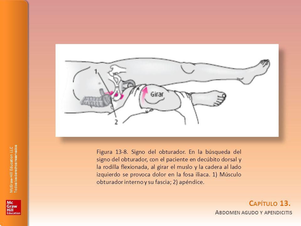 Figura 13-8. Signo del obturador