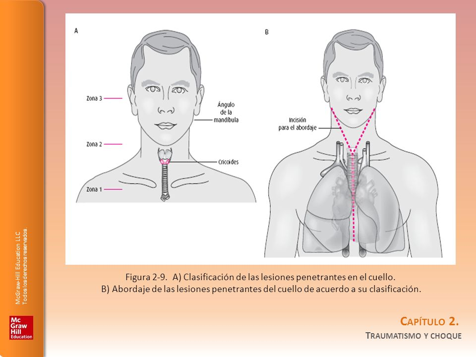 Figura 2-9. A) Clasificación de las lesiones penetrantes en el cuello.