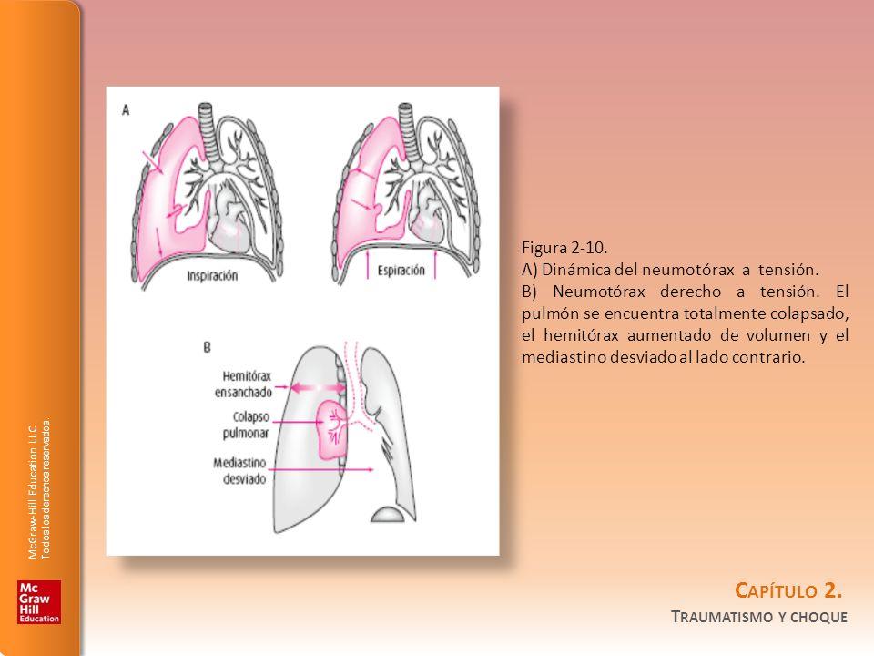 Figura 2-10. A) Dinámica del neumotórax a tensión.