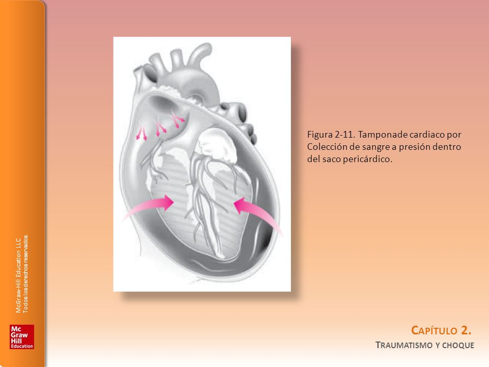 Figura 2-11. Tamponade cardiaco por