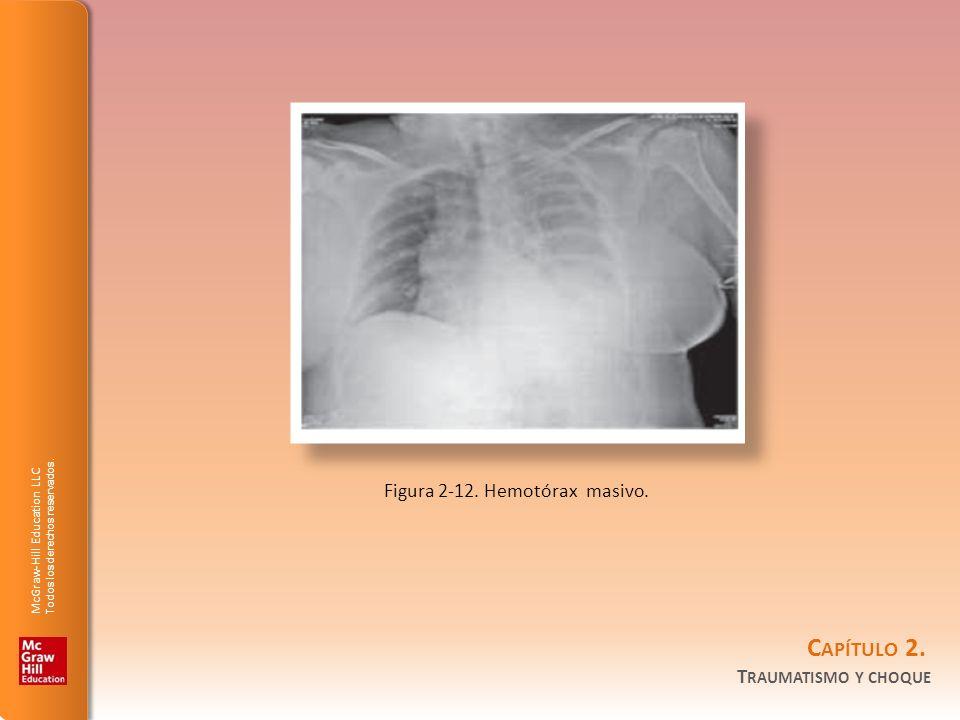 Figura 2-12. Hemotórax masivo.