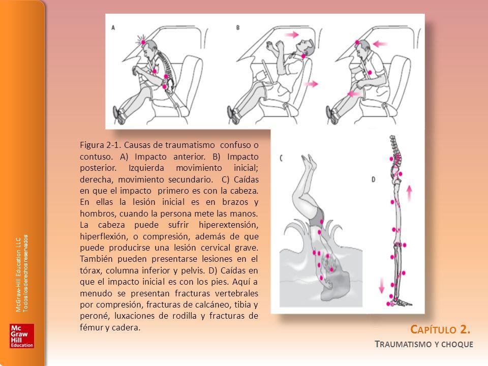 Figura 2-1. Causas de traumatismo confuso o contuso