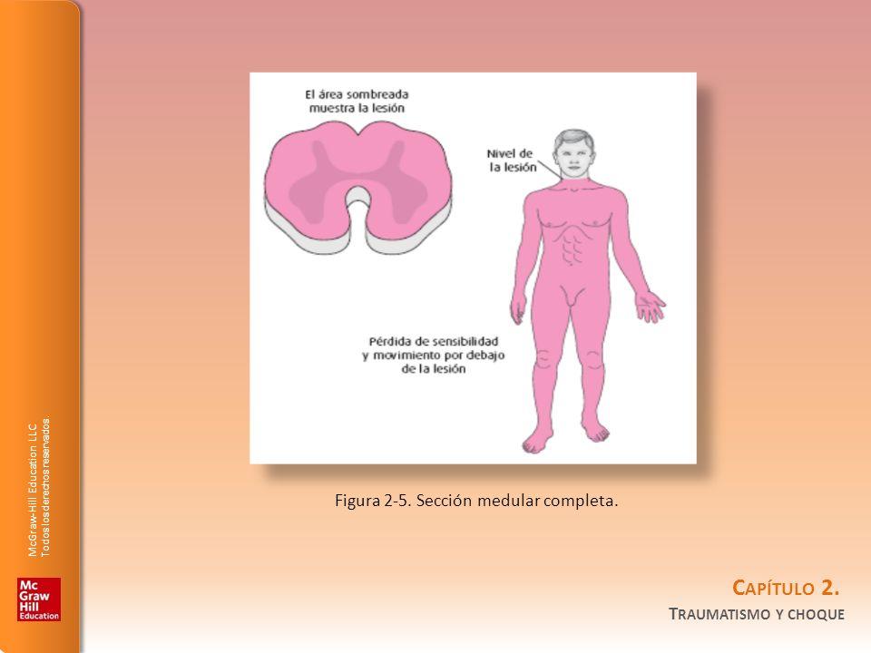 Figura 2-5. Sección medular completa.