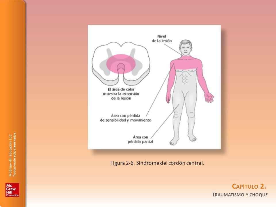 Figura 2-6. Síndrome del cordón central.
