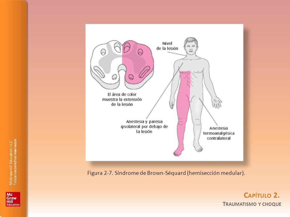 Figura 2-7. Síndrome de Brown-Séquard (hemisección medular).