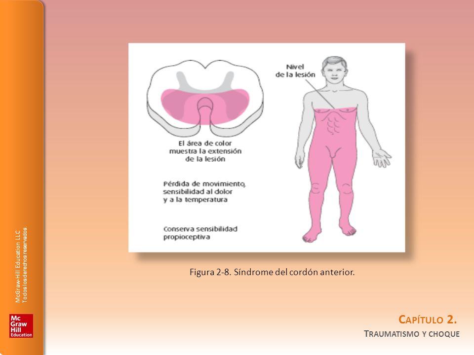 Figura 2-8. Síndrome del cordón anterior.