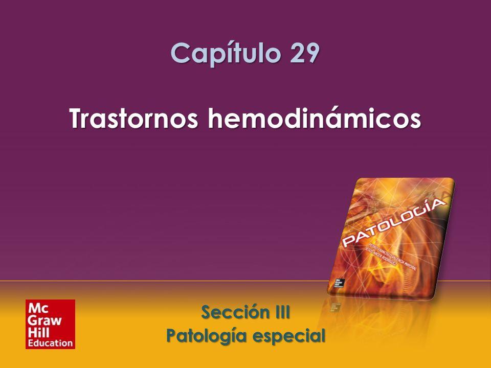 Capítulo 29 Trastornos hemodinámicos
