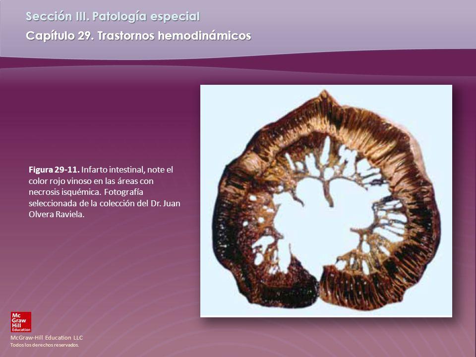 Figura 29-11.Infarto intestinal, note el color rojo vinoso en las áreas con necrosis isquémica.