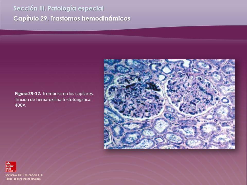 Figura 29-12. Trombosis en los capilares