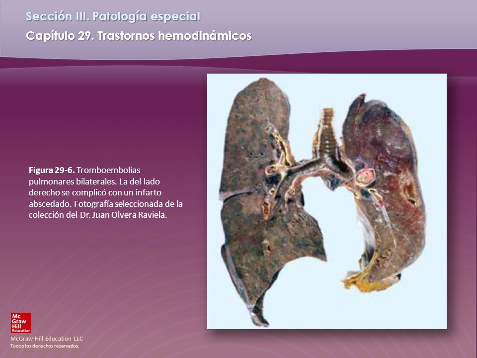Figura 29-6. Tromboembolias pulmonares bilaterales