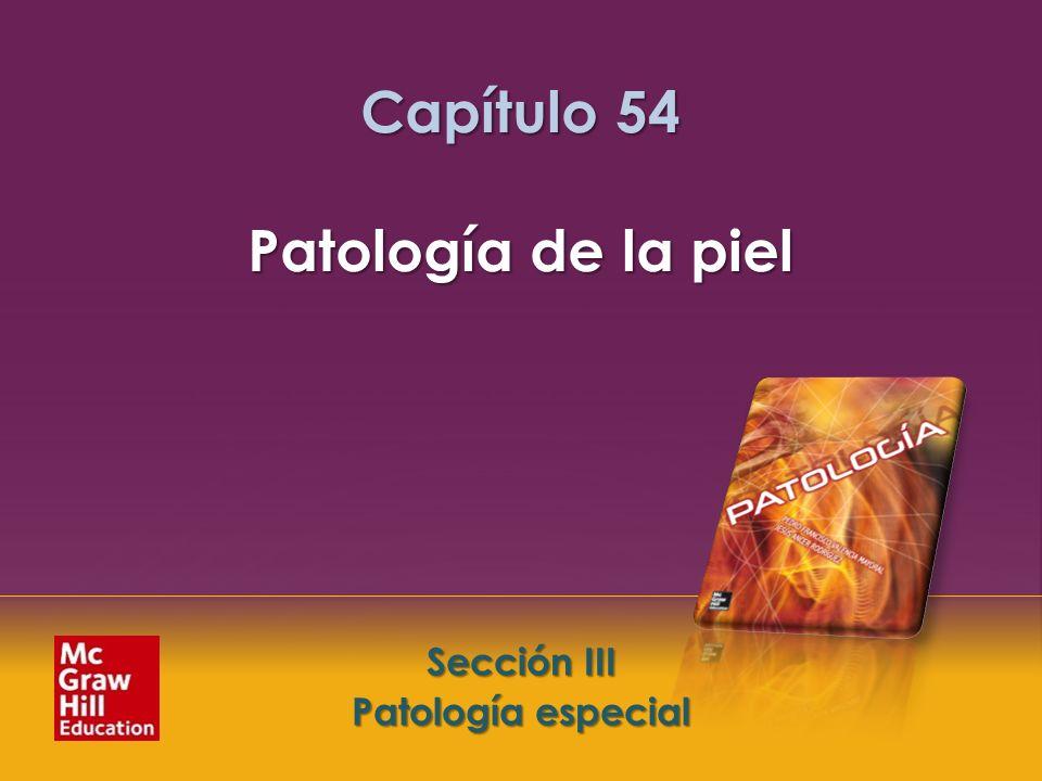 Capítulo 54 Patología de la piel