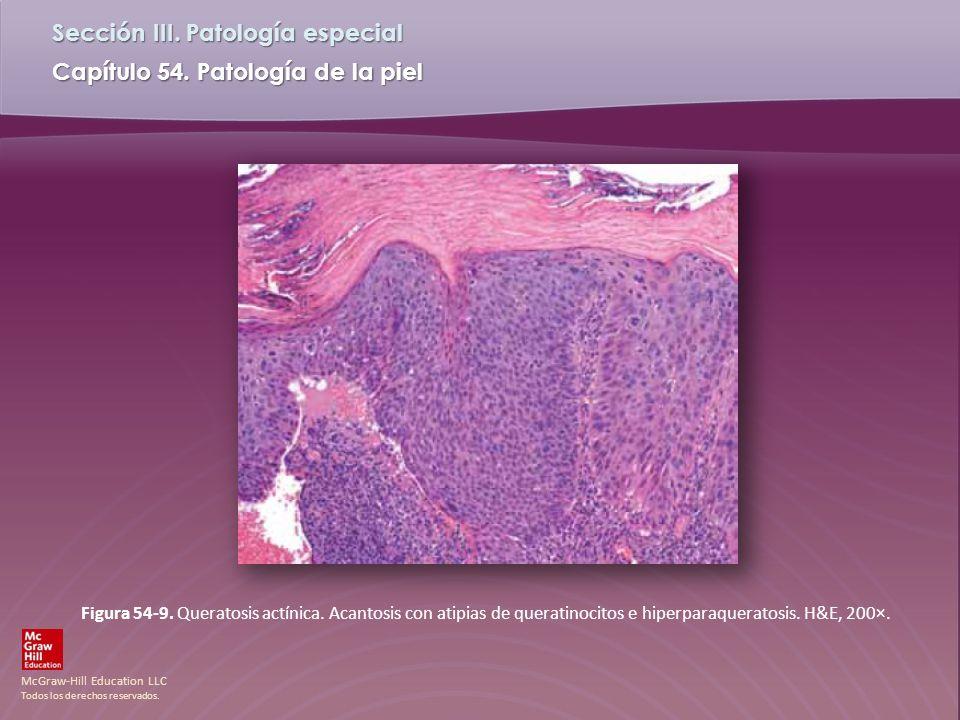 Figura 54-9. Queratosis actínica