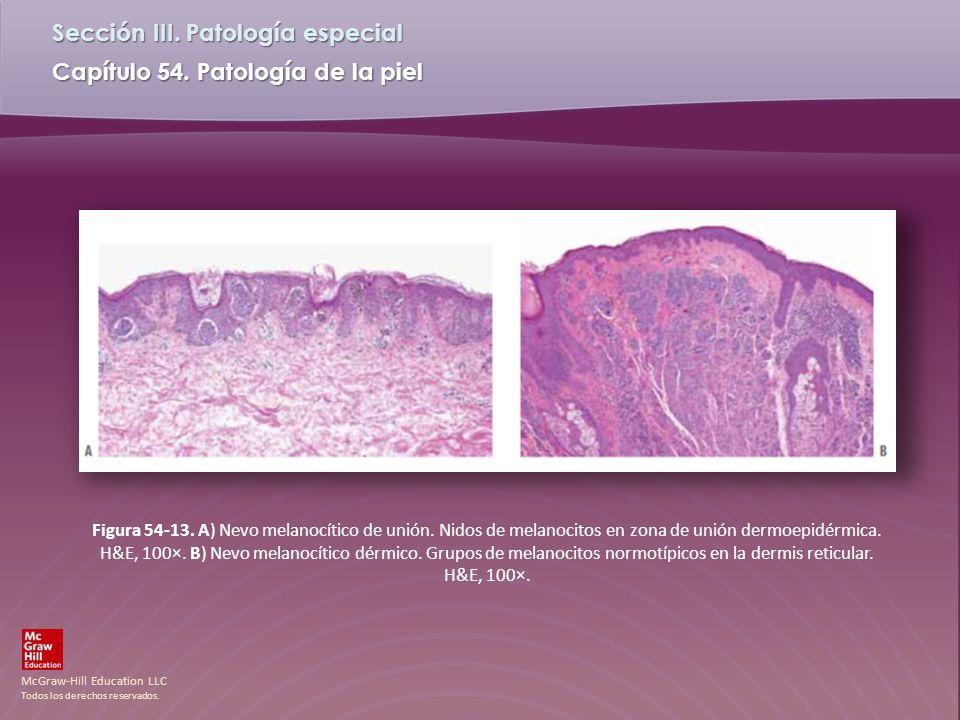 Figura 54-13. A) Nevo melanocítico de unión