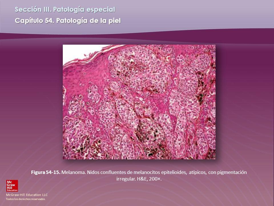 Figura 54-15. Melanoma.