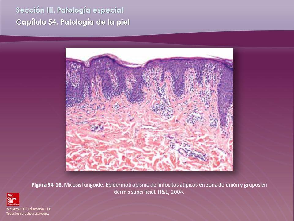 Figura 54-16. Micosis fungoide