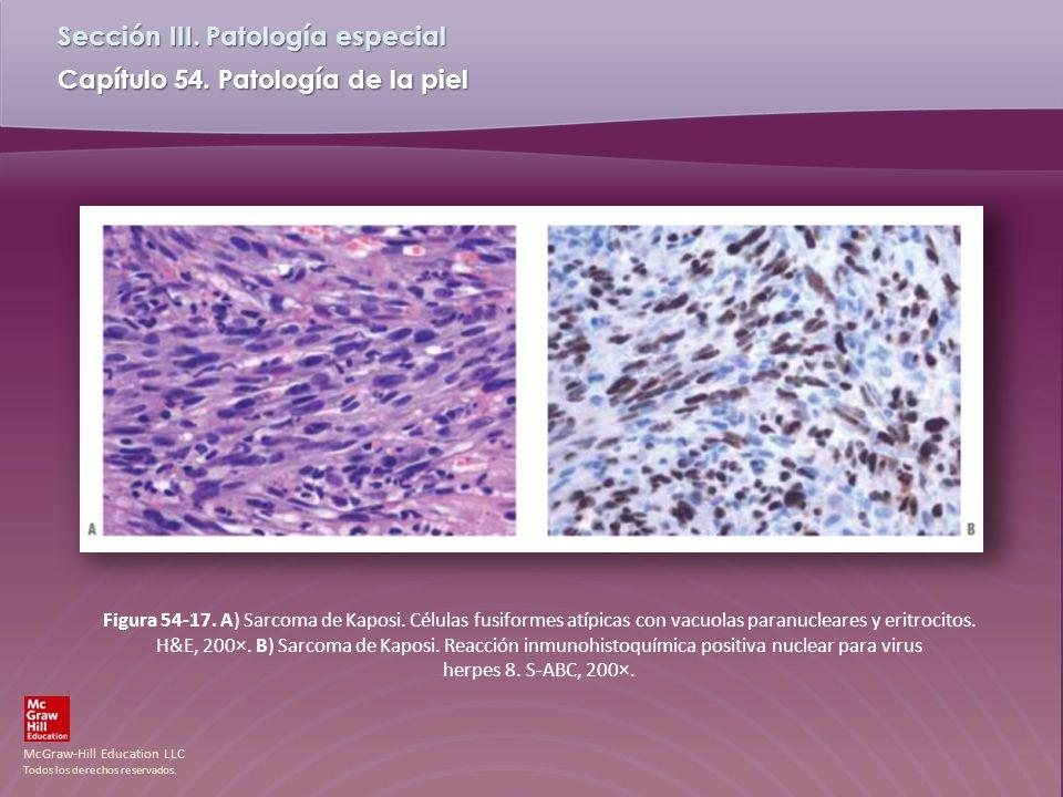 Figura 54-17. A) Sarcoma de Kaposi