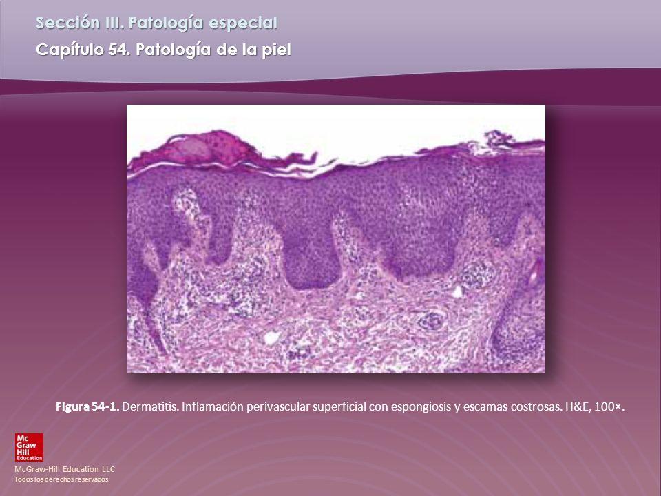 Figura 54-1. Dermatitis. Inflamación perivascular superficial con espongiosis y escamas costrosas.