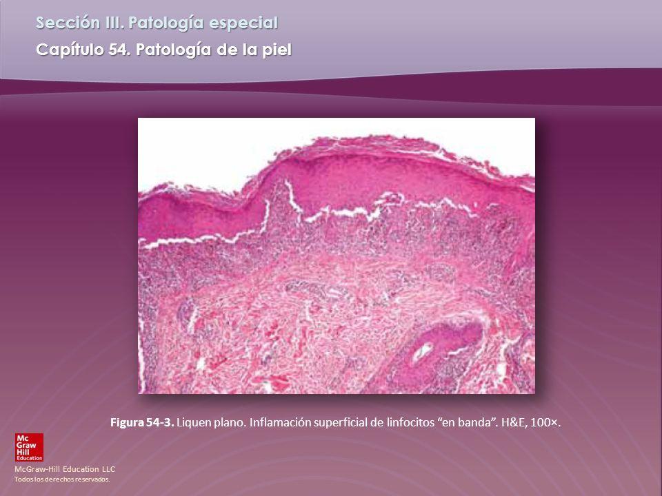 Figura 54-3. Liquen plano. Inflamación superficial de linfocitos en banda . H&E, 100×.