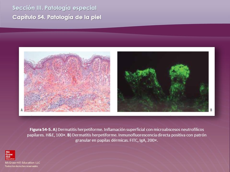 Figura 54-5. A) Dermatitis herpetiforme