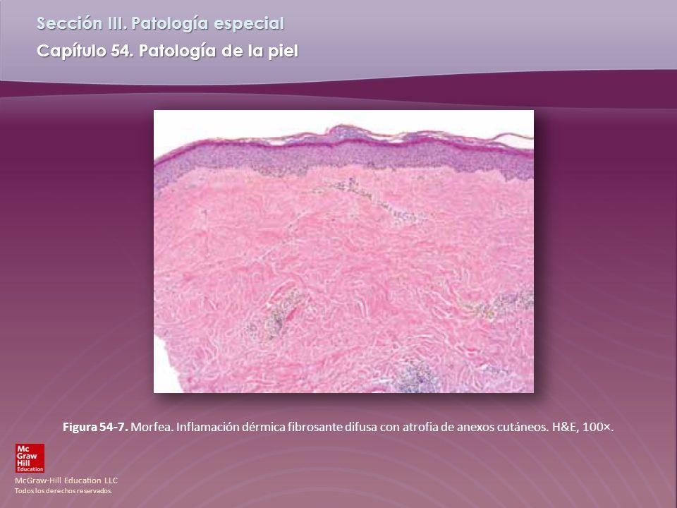 Figura 54-7. Morfea. Inflamación dérmica fibrosante difusa con atrofia de anexos cutáneos.