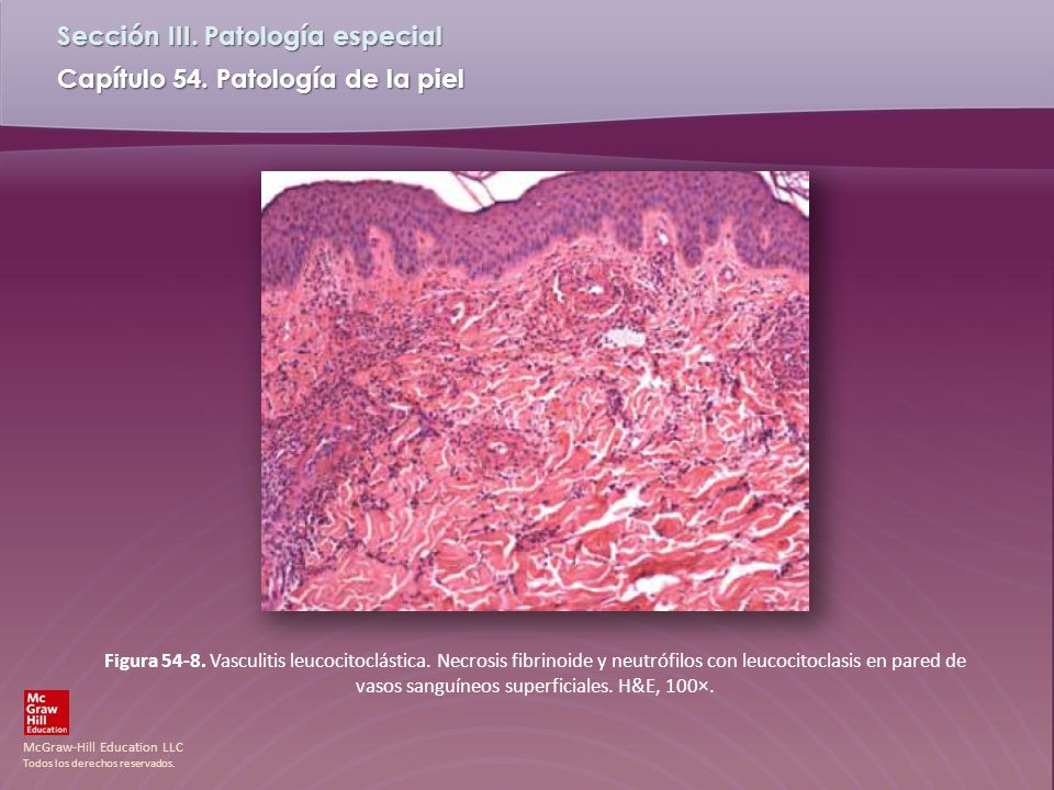 Figura 54-8. Vasculitis leucocitoclástica